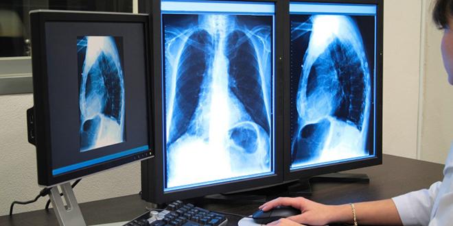 Imagerie médicale : Le ras-le-bol des professionnels
