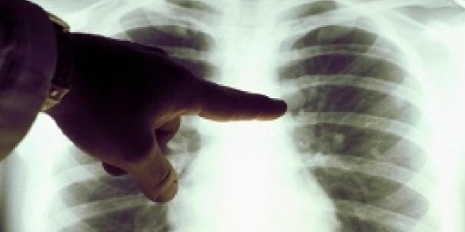 Tanger-Tétouan-Al Hoceima : 80 millions de DH pour la santé